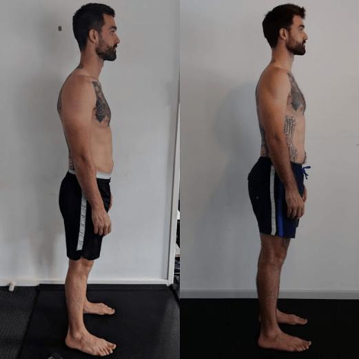 millar posture correction exercises- functional patterns